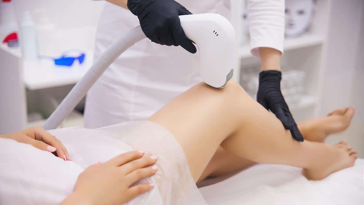 Benefits of Laser Hair Removal Therapy
