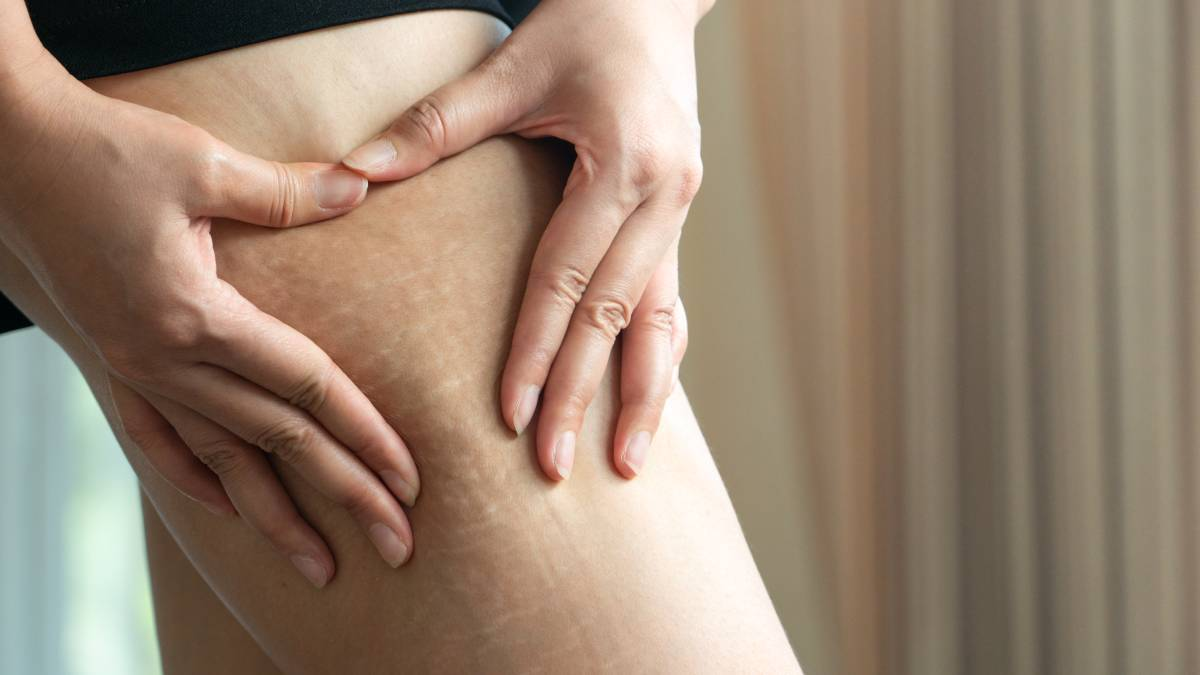 Stretch Mark Removal Treatment