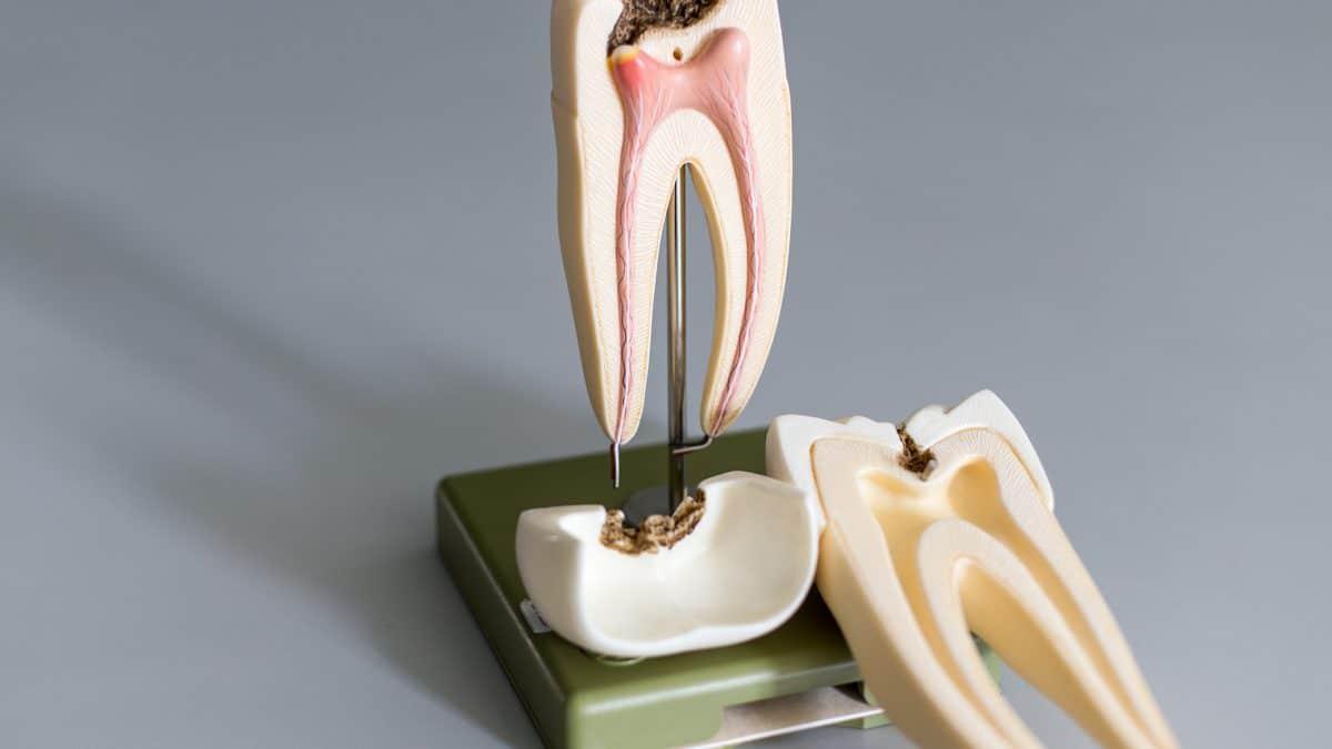 Dental health and heart disease