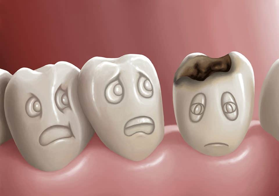Cavities and Tooth Decay