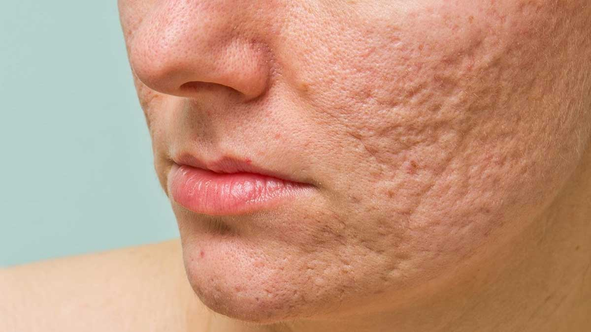 Laser Treatment for Scars