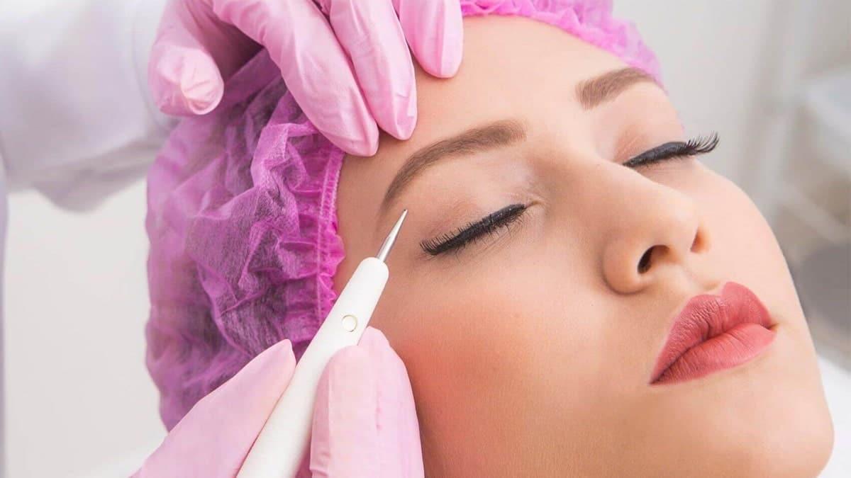 Plasma Pen Treatment for Under Eye Wrinkles