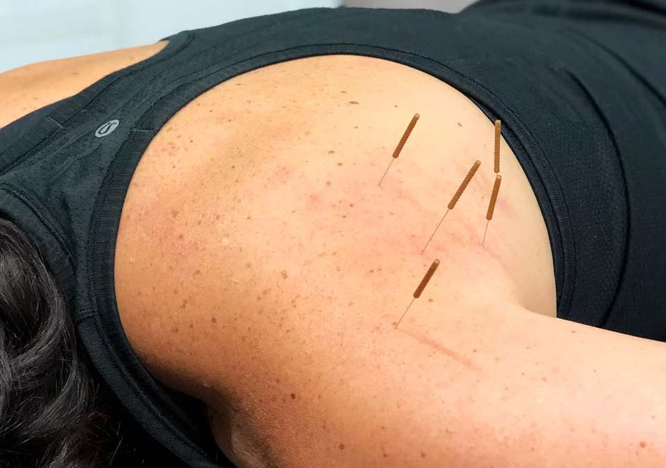 Dry Needling and its Benefits
