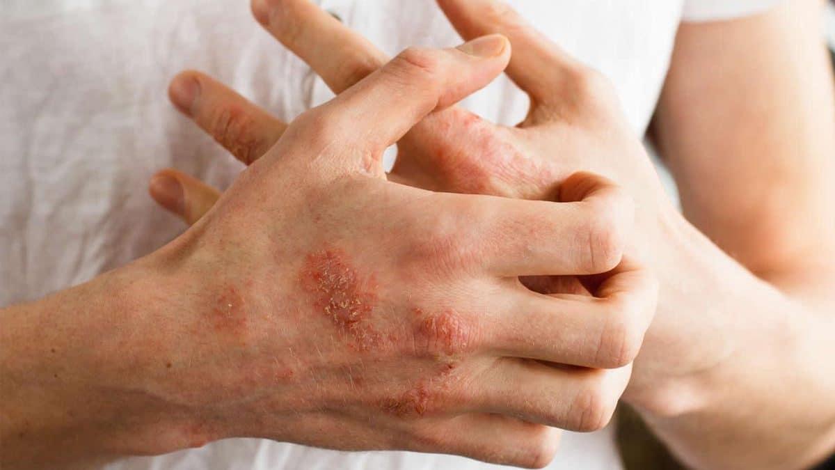 Menopause Eczema