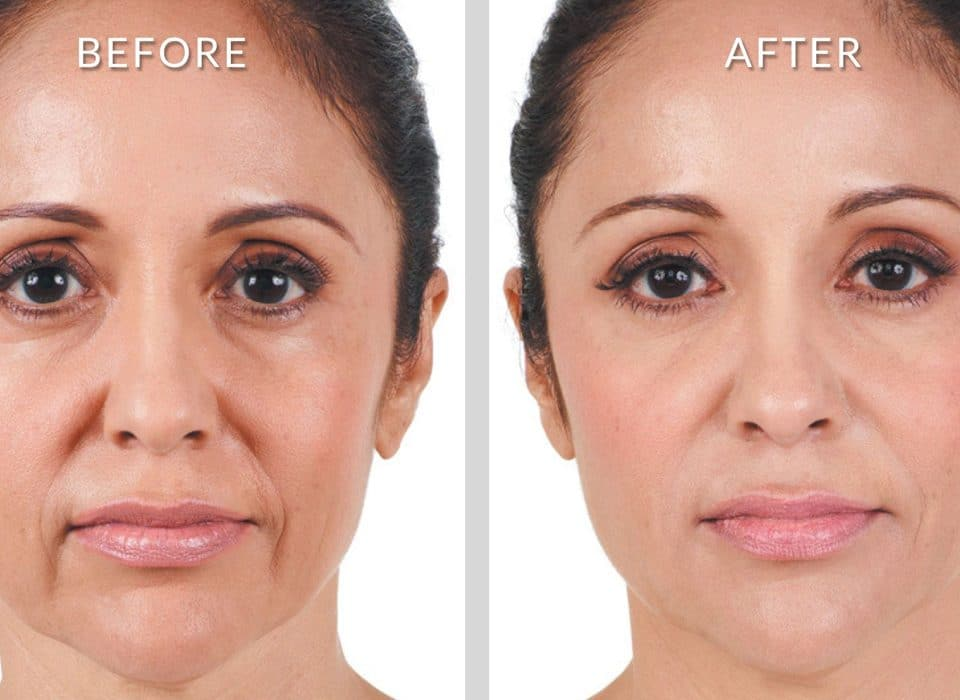 Non-Surgical Treatment for Nasolabial Folds and Marionette Lines
