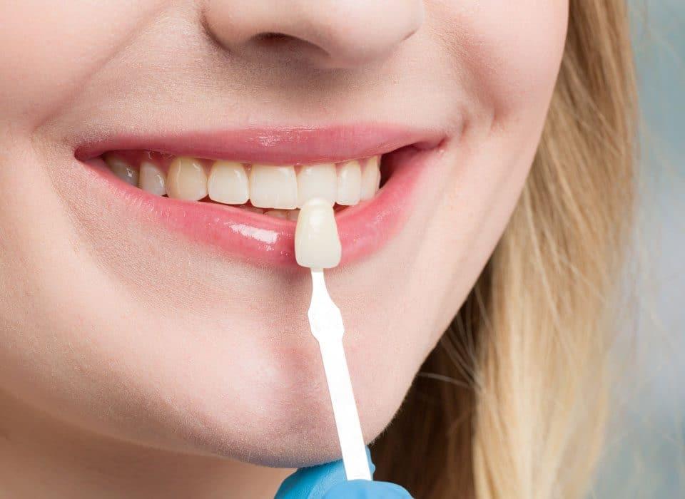 The Wonders of Dental Veneers