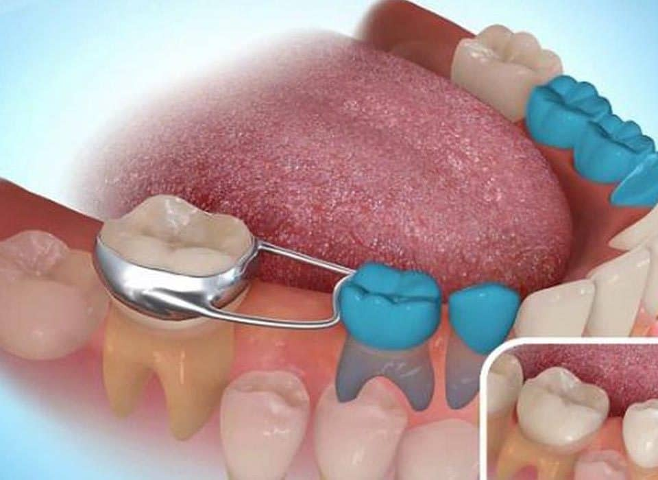 Dental Space maintainer