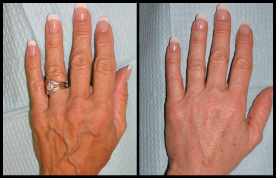 Fat transfer treatment for hand rejuvenation